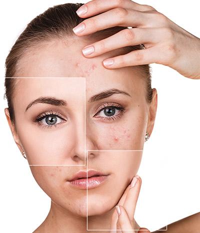 Skin Problems and Treatments - Essi Güzellik - Estetik